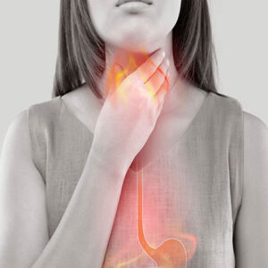 Best-and-Worst-Foods-for-Acid-Reflux-22